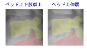 椎間孔比較