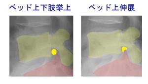 椎間孔比較_神経根