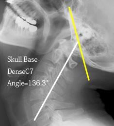 脊椎の基本10-3