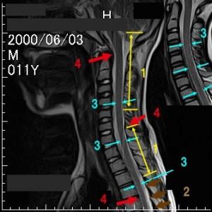 脊椎の基本22