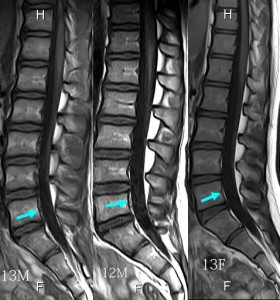 脊椎の基本35