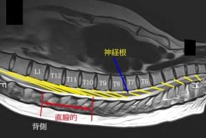 脊椎の基本19
