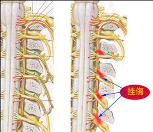 脊椎の基本11