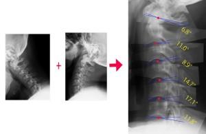 脊椎の基本06