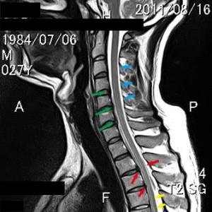 脊椎の基本20