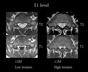 脊椎の基本37