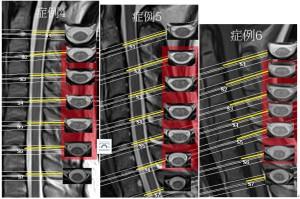 脊椎の基本28