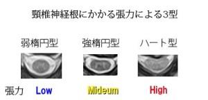 脊椎の基本23