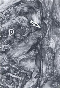 脊椎の基本12